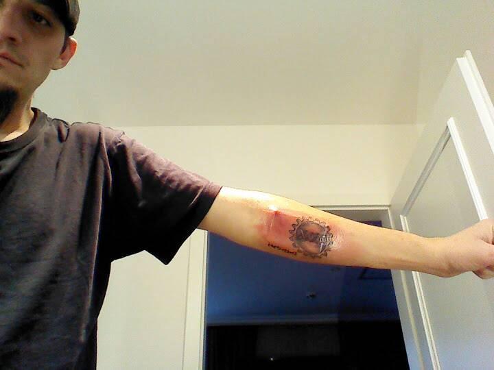 Biohacking Grinder Update Tim Cannon Implants Circadia 1